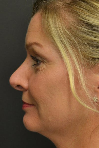 Rhinoplasty Gallery - Patient 23533027 - Image 2