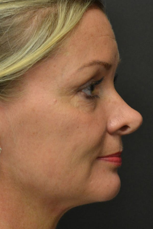 Rhinoplasty Gallery - Patient 23533027 - Image 3