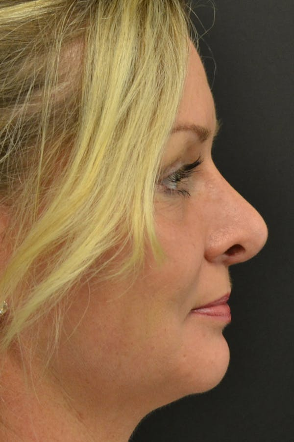 Rhinoplasty Gallery - Patient 23533027 - Image 4