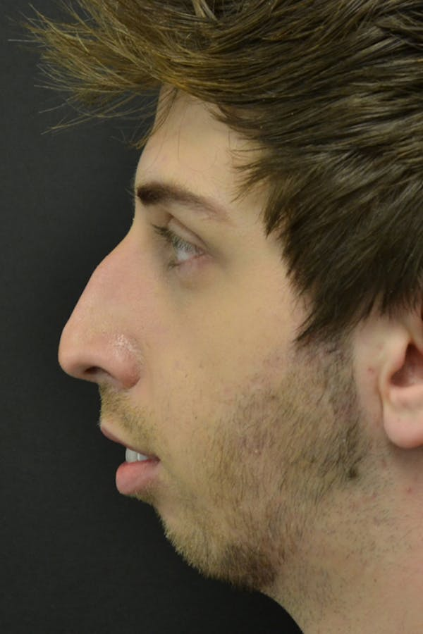 Rhinoplasty Gallery - Patient 23533030 - Image 3