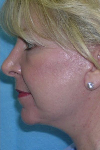 Neck Lift Gallery - Patient 23533045 - Image 2