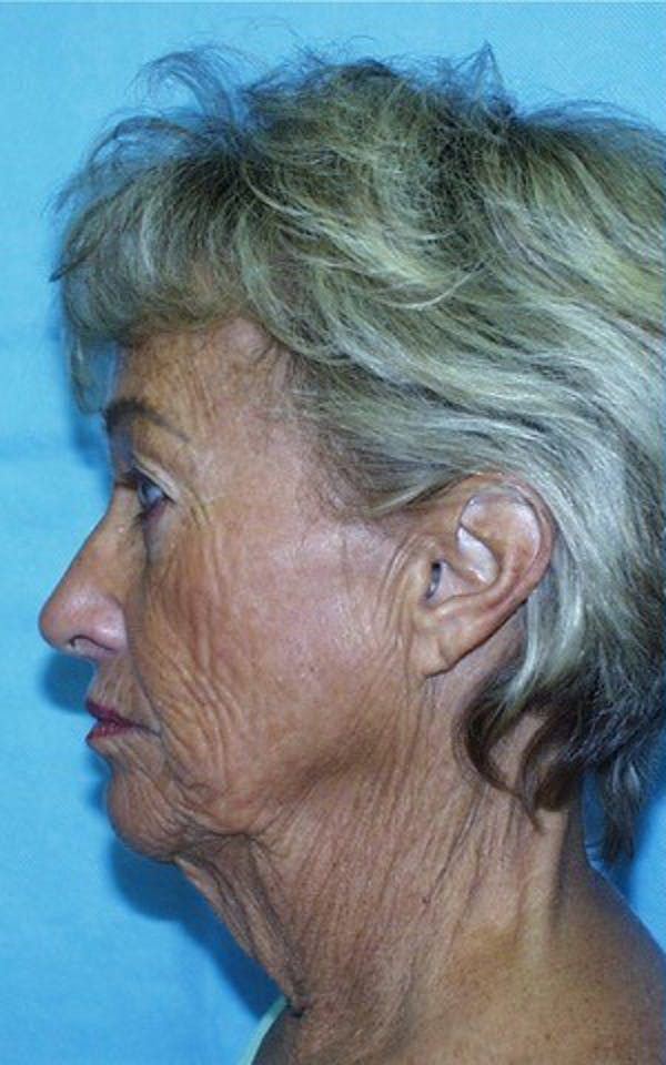 Neck Lift Gallery - Patient 23533047 - Image 1