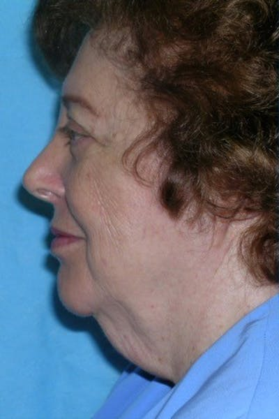 Neck Lift Gallery - Patient 23533067 - Image 1
