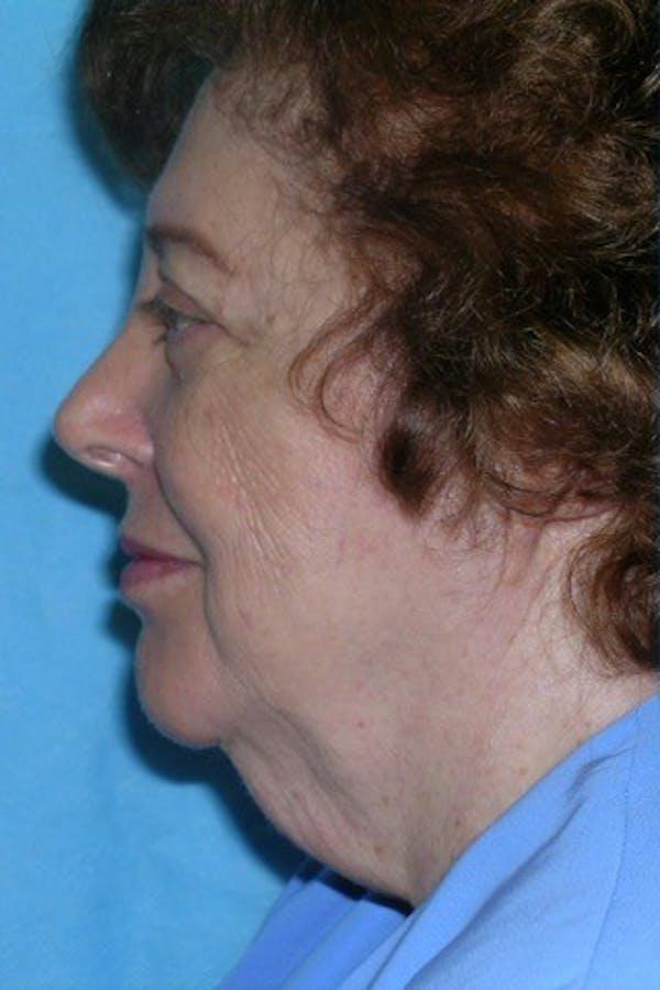 Neck Lift Gallery - Patient 23533067 - Image 1