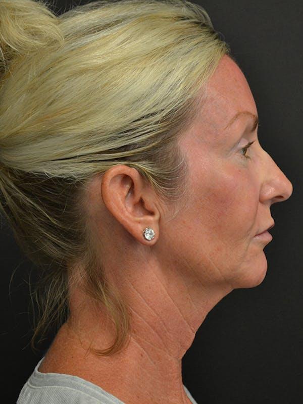 Neck Lift Gallery - Patient 23533072 - Image 3