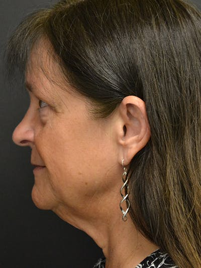 Neck Lift Gallery - Patient 23533075 - Image 1
