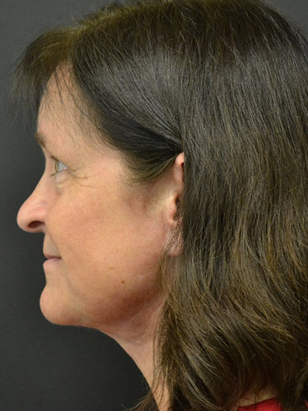 Neck Lift Gallery - Patient 23533075 - Image 2