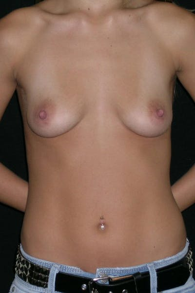 Breast Augmentation Gallery - Patient 23533086 - Image 1