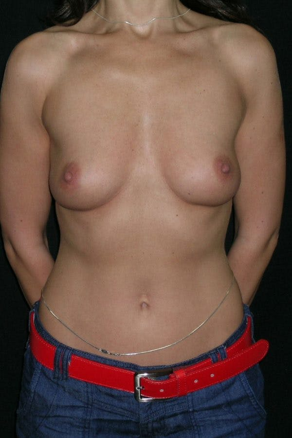 Breast Augmentation Gallery - Patient 23533093 - Image 1