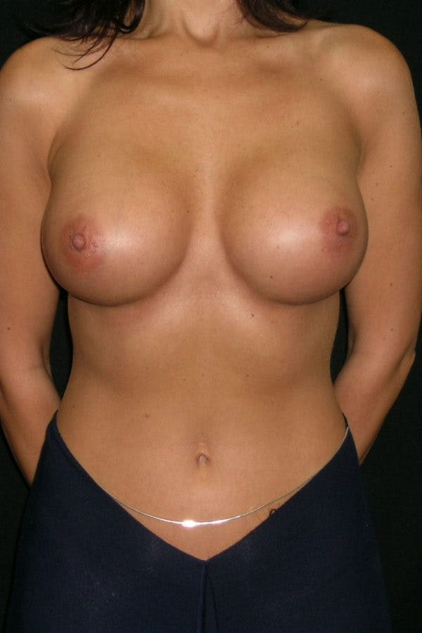 Breast Augmentation Gallery - Patient 23533093 - Image 2
