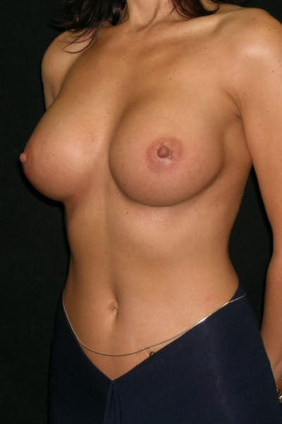 Breast Augmentation Gallery - Patient 23533093 - Image 4