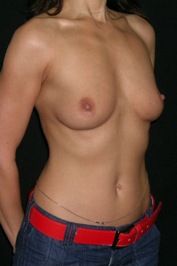 Breast Augmentation Gallery - Patient 23533093 - Image 5