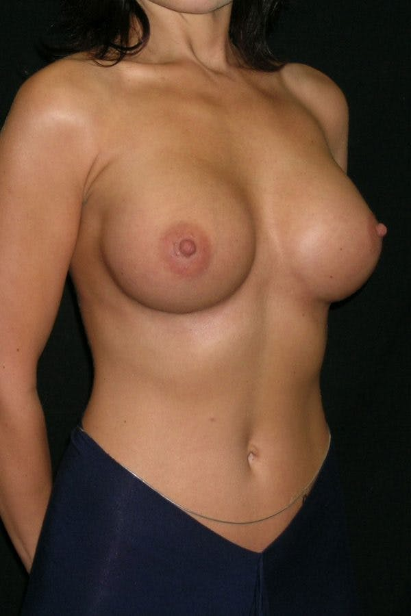 Breast Augmentation Gallery - Patient 23533093 - Image 6