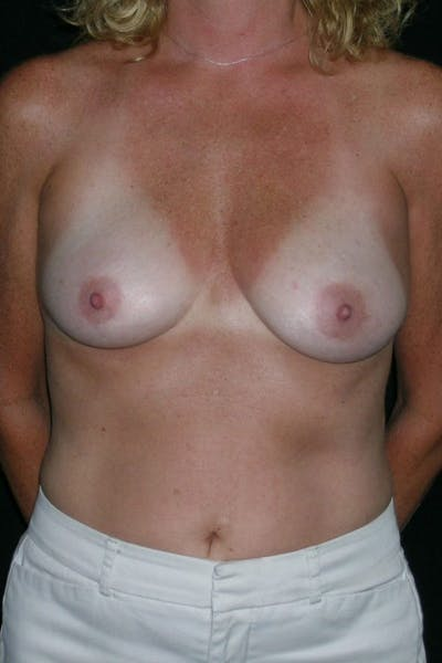 Breast Augmentation Gallery - Patient 23533098 - Image 1