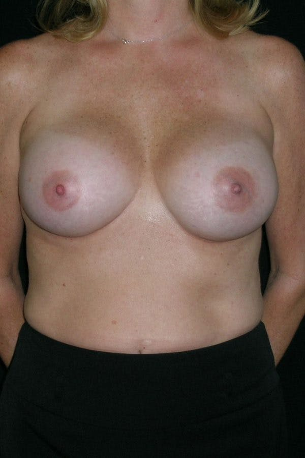 Breast Augmentation Gallery - Patient 23533098 - Image 2