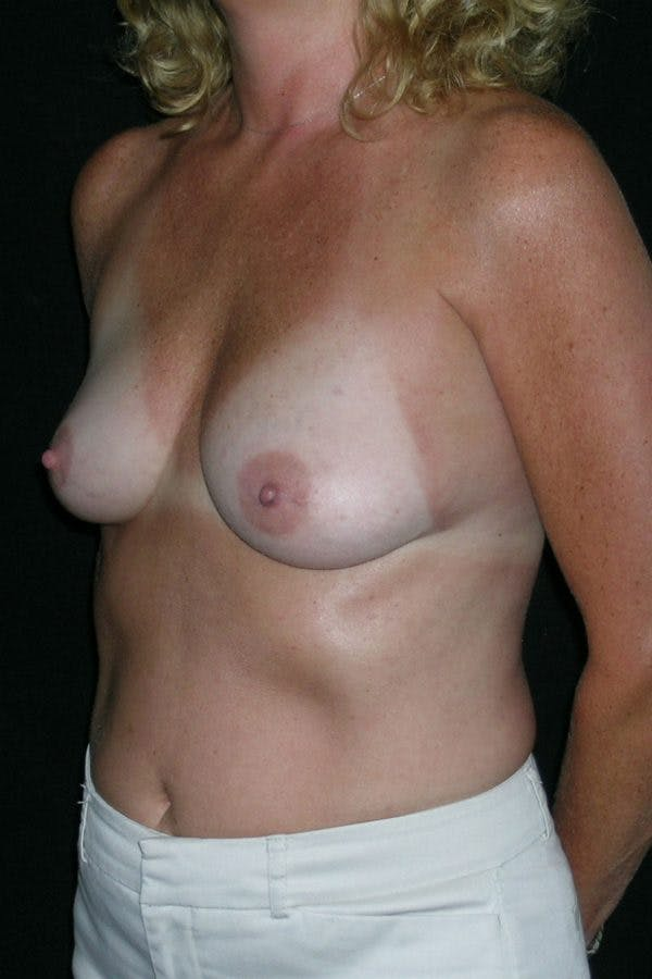 Breast Augmentation Gallery - Patient 23533098 - Image 3