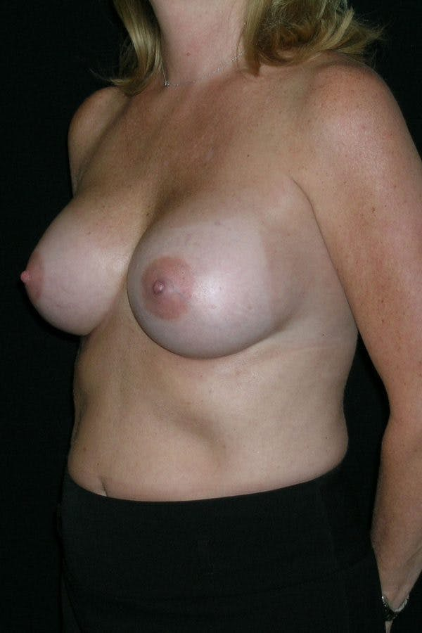 Breast Augmentation Gallery - Patient 23533098 - Image 4