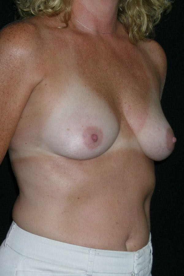 Breast Augmentation Gallery - Patient 23533098 - Image 5