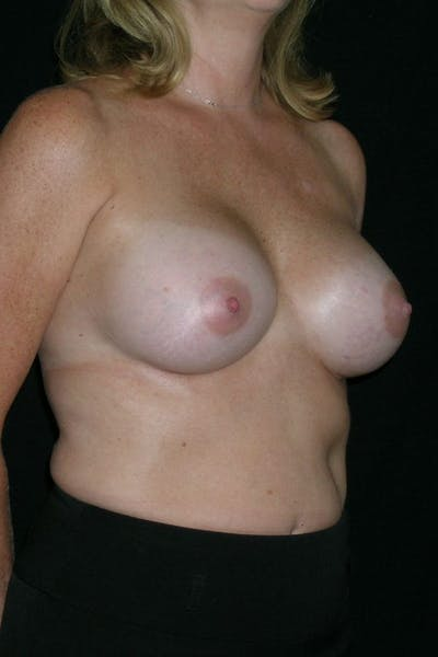 Breast Augmentation Gallery - Patient 23533098 - Image 6