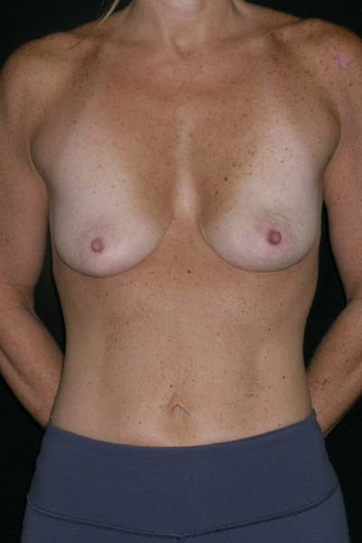 Breast Augmentation Gallery - Patient 23533100 - Image 1