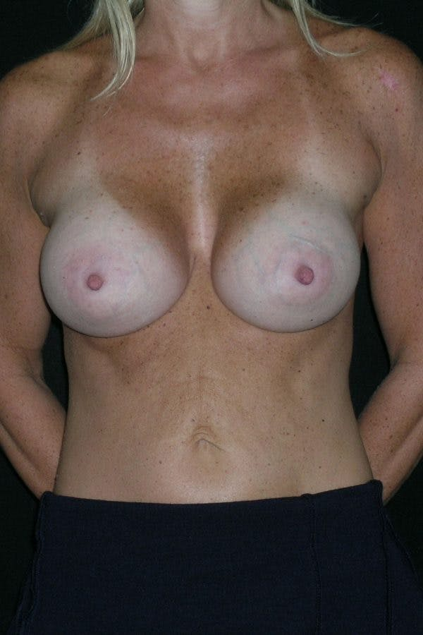 Breast Augmentation Gallery - Patient 23533100 - Image 2