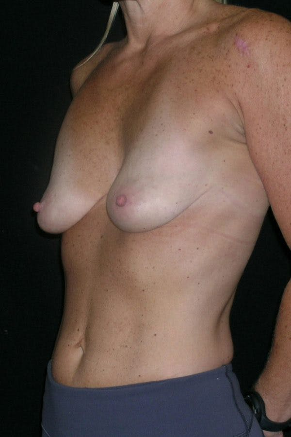 Breast Augmentation Gallery - Patient 23533100 - Image 3