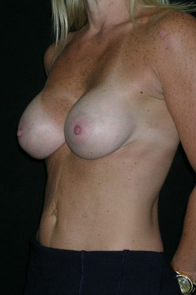 Breast Augmentation Gallery - Patient 23533100 - Image 4