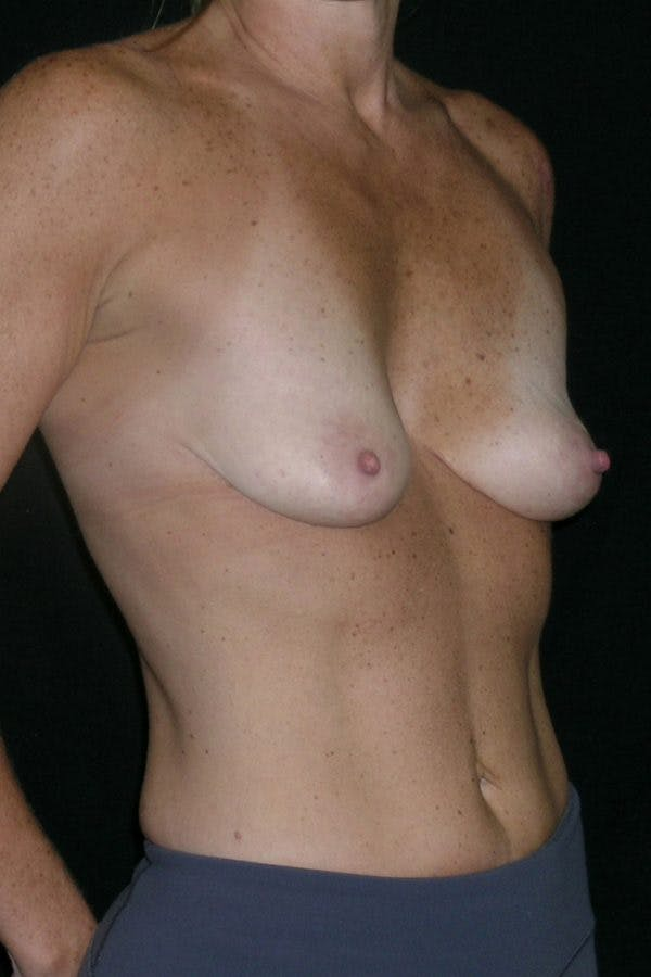 Breast Augmentation Gallery - Patient 23533100 - Image 5