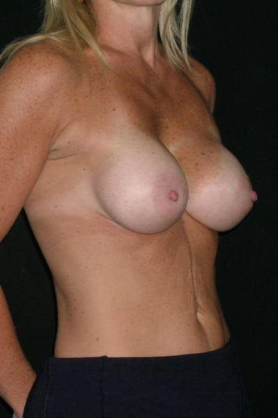 Breast Augmentation Gallery - Patient 23533100 - Image 6