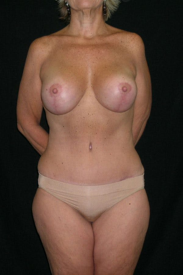 Breast Augmentation Gallery - Patient 23533101 - Image 2