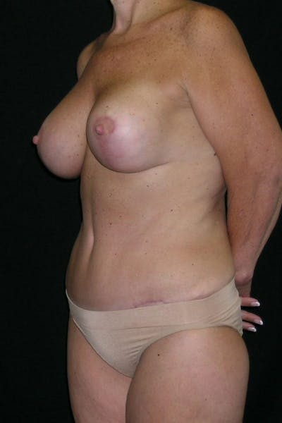 Breast Augmentation Gallery - Patient 23533101 - Image 4