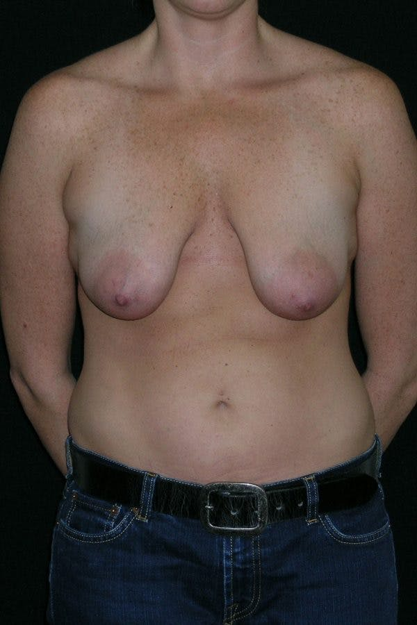 Breast Augmentation Gallery - Patient 23533104 - Image 1