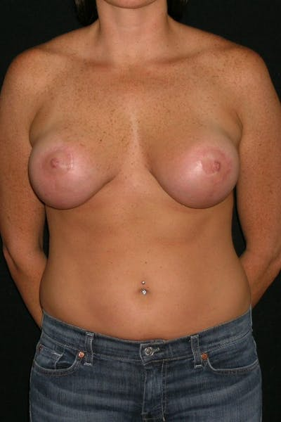 Breast Augmentation Gallery - Patient 23533104 - Image 2