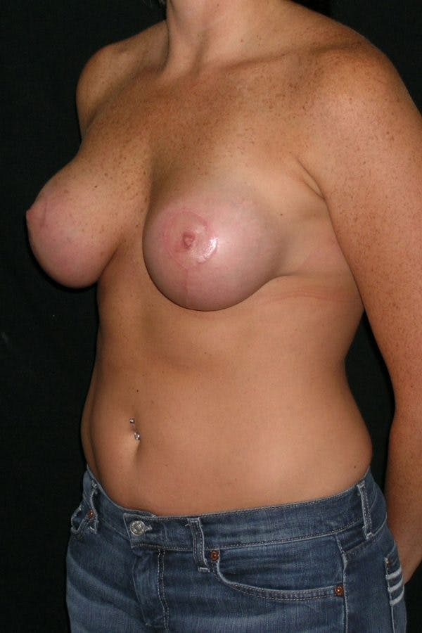 Breast Augmentation Gallery - Patient 23533104 - Image 4