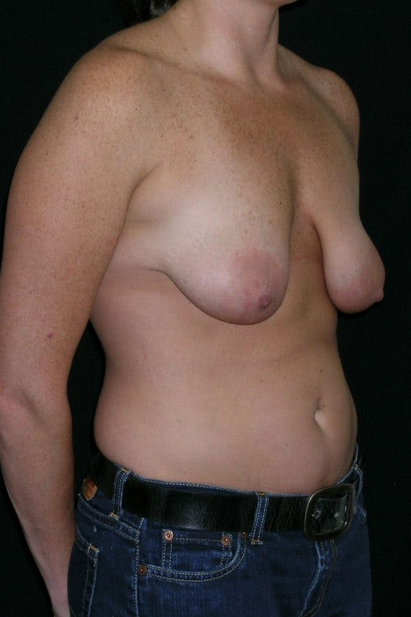 Breast Augmentation Gallery - Patient 23533104 - Image 5