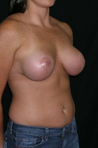 Breast Augmentation Gallery - Patient 23533104 - Image 6
