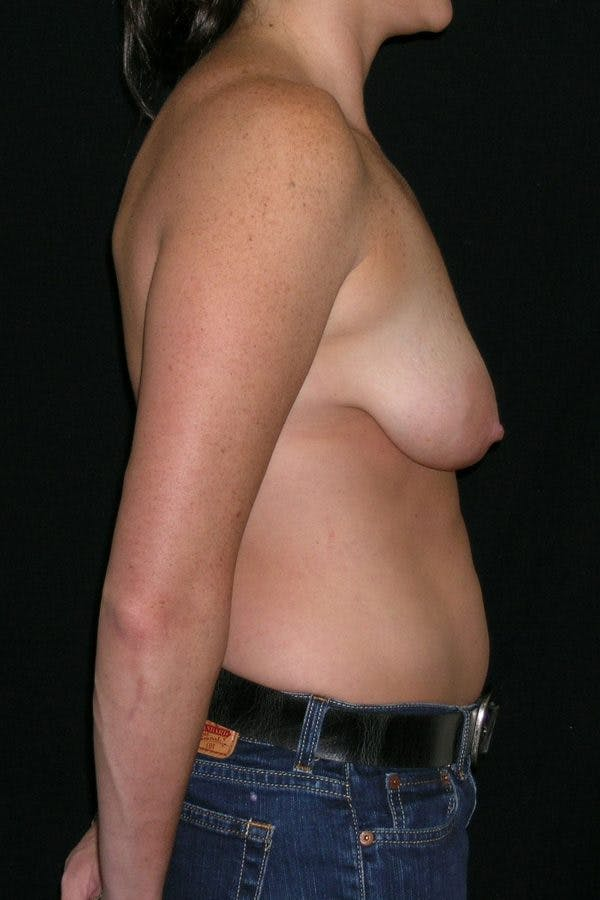 Breast Augmentation Gallery - Patient 23533104 - Image 7
