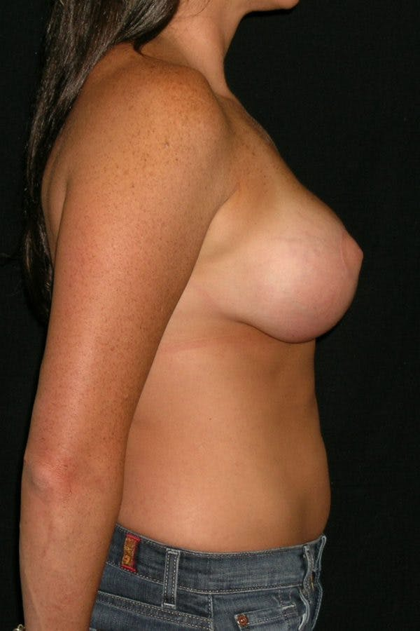 Breast Augmentation Gallery - Patient 23533104 - Image 8