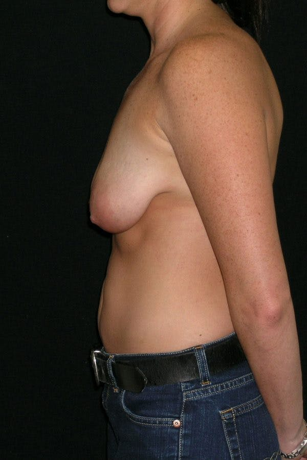 Breast Augmentation Gallery - Patient 23533104 - Image 9
