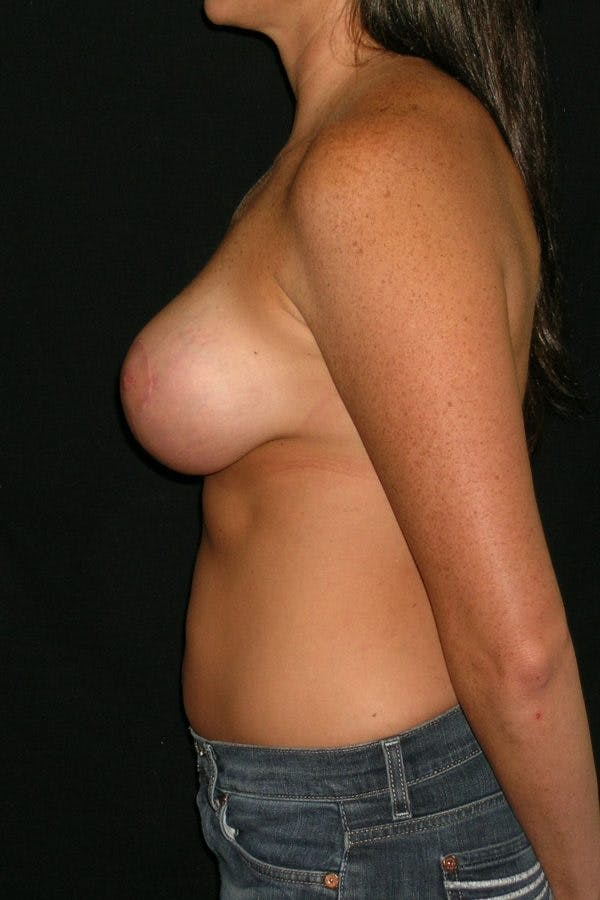 Breast Augmentation Gallery - Patient 23533104 - Image 10