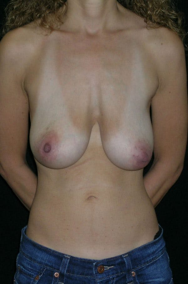 Breast Augmentation Gallery - Patient 23533118 - Image 1