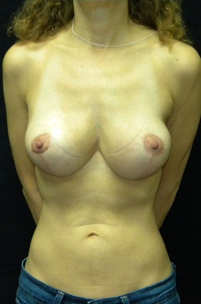 Breast Augmentation Gallery - Patient 23533118 - Image 2