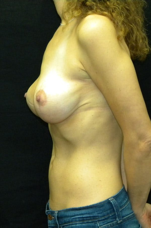 Breast Augmentation Gallery - Patient 23533118 - Image 4