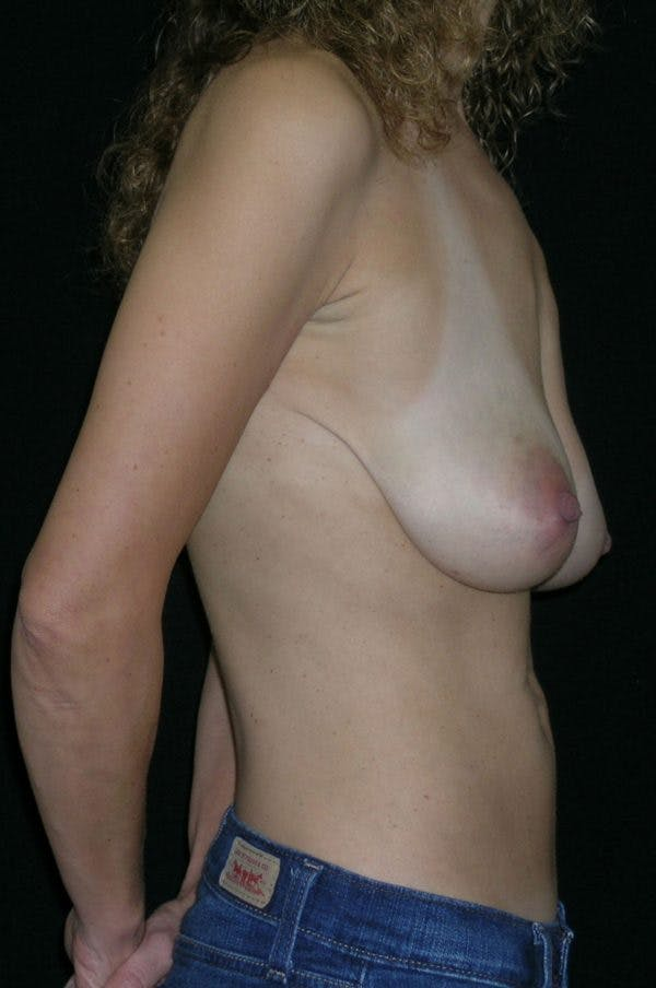Breast Augmentation Gallery - Patient 23533118 - Image 5