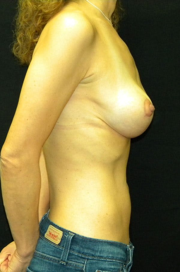 Breast Augmentation Gallery - Patient 23533118 - Image 6