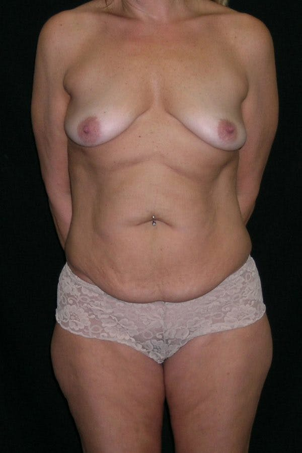 Breast Augmentation Gallery - Patient 23533123 - Image 1