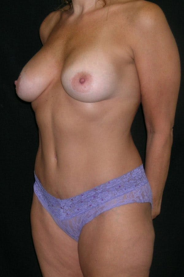 Breast Augmentation Gallery - Patient 23533123 - Image 4