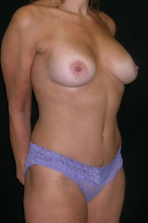 Breast Augmentation Gallery - Patient 23533123 - Image 6