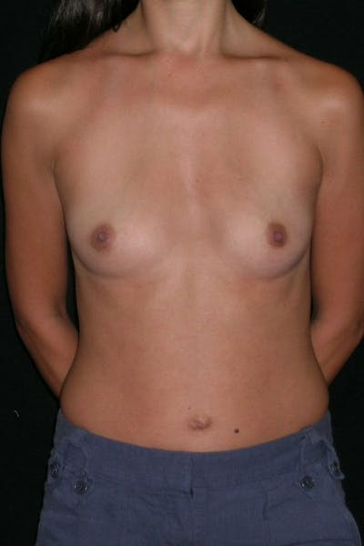 Breast Augmentation Gallery - Patient 23533128 - Image 1