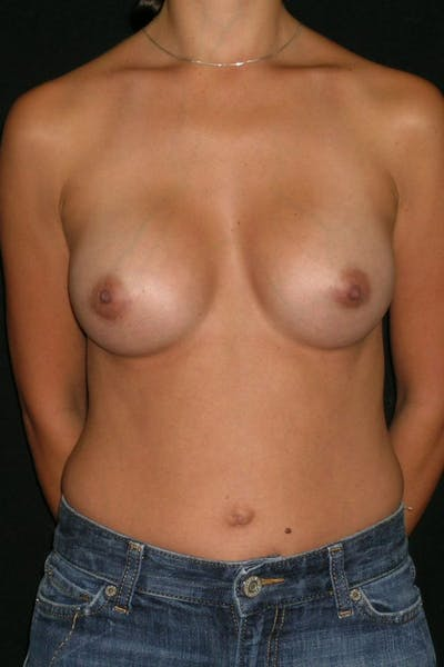 Breast Augmentation Gallery - Patient 23533128 - Image 2